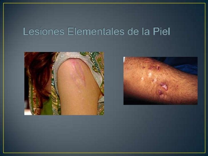 Eczema: Proceso descamativo y asociado a picorque afecta a la piel. Se clasifica en: - Agudo: Se caracteriza por eritema, ...