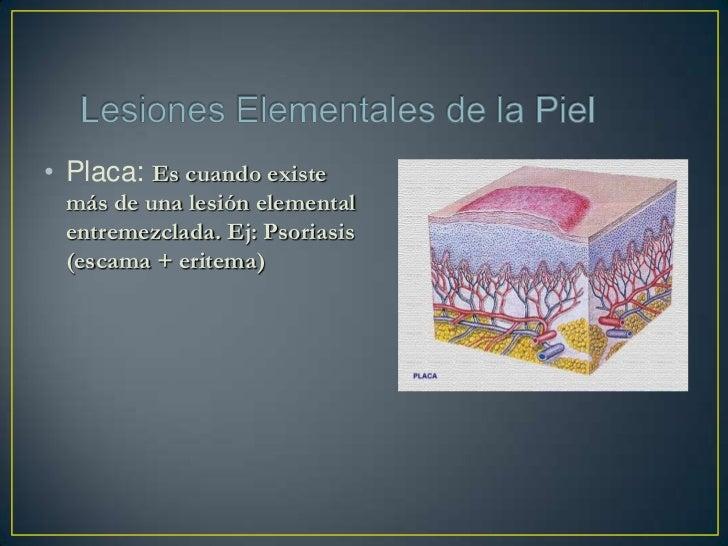 Eczema atópico: Hay lesiones descamativas y rojizas,principalmente en las flexuras de las extremidades, Se asocia a asma,u...