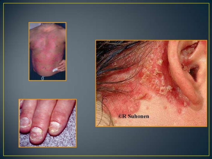 Elevación circunscritas de la piel a expensas del incrementode la capa cornea.                   Queratosis.              ...