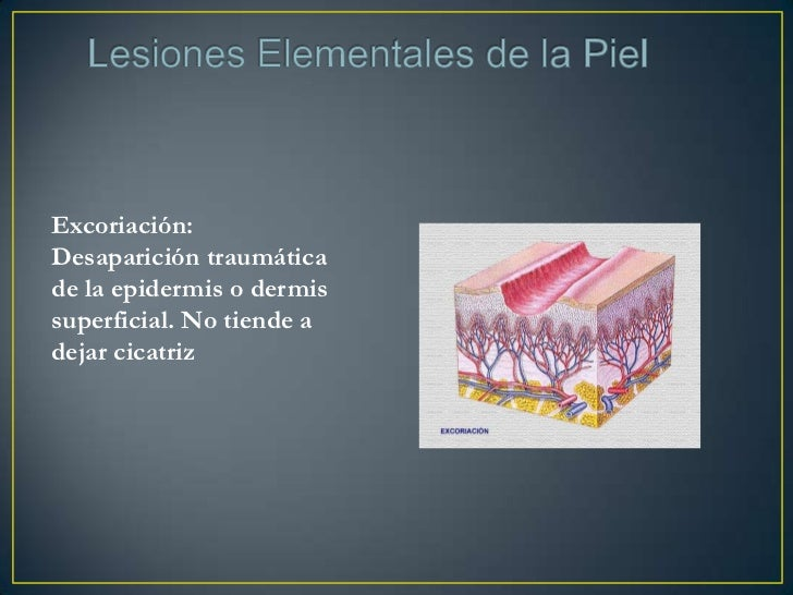 • Espongiosis: Ensanchamiento del espacio intercelular en el  cuerpo mucoso por edema intersticial.• Degeneración Hidrópic...