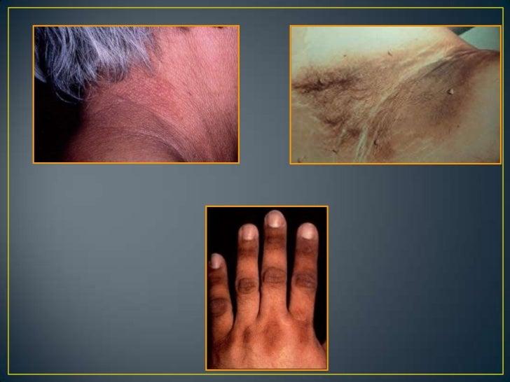 Lesiones elementales de la piel