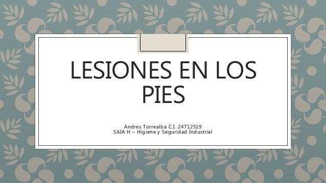 LESIONES EN LOS PIES Andres Torrealba C.I. 24712519 SAIA H – Higiene y Seguridad Industrial