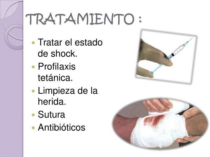 TRATAMIENTO : Tratar el estado  de shock. Profilaxis  tetánica. Limpieza de la  herida. Sutura Antibióticos