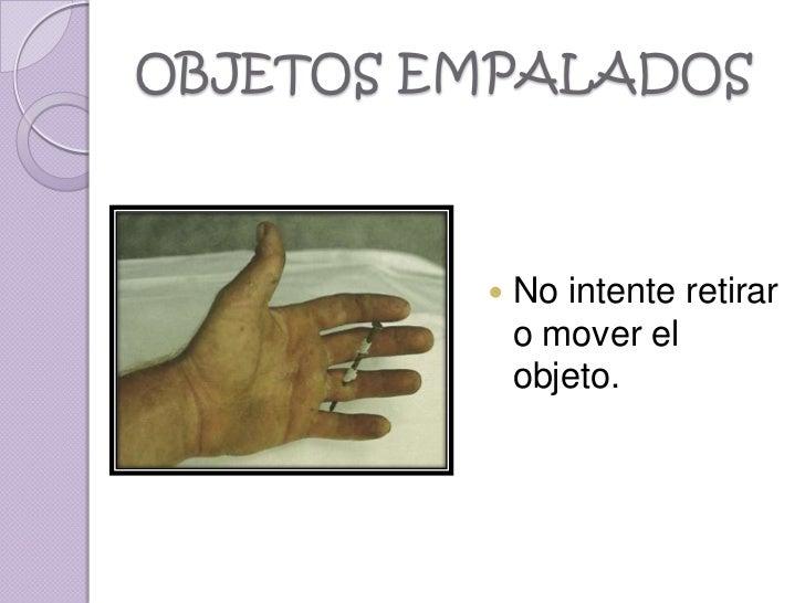 OBJETOS EMPALADOS            No intente retirar             o mover el             objeto.