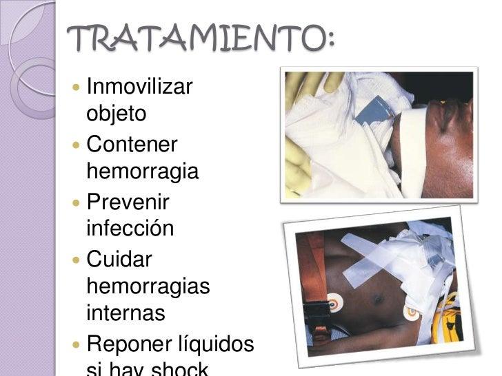 TRATAMIENTO: Inmovilizar  objeto Contener  hemorragia Prevenir  infección Cuidar  hemorragias  internas Reponer líqui...