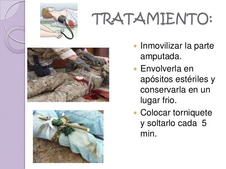 TRATAMIENTO:     Inmovilizar la parte      amputada.     Envolverla en      apósitos estériles y      conservarla en un ...