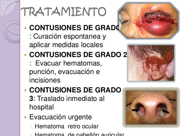 TRATAMIENTO CONTUSIONES DE GRADO 1  : Curación espontanea y  aplicar medidas locales CONTUSIONES DE GRADO 2  : Evacuar h...