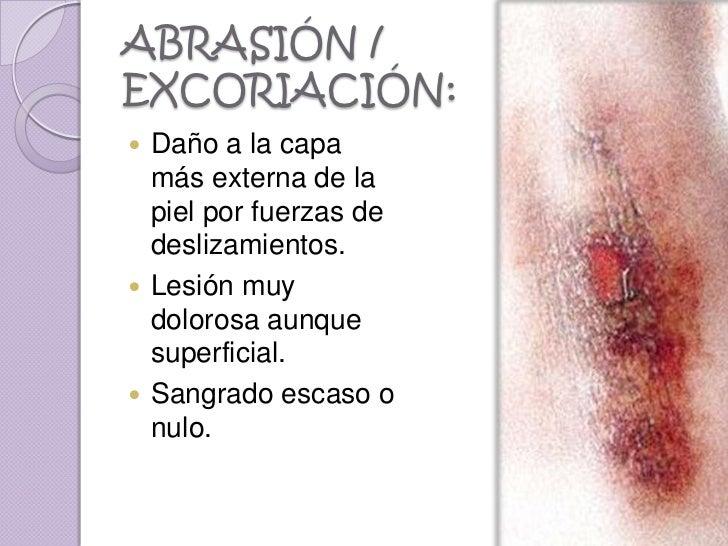 ABRASIÓN /EXCORIACIÓN: Daño a la capa  más externa de la  piel por fuerzas de  deslizamientos. Lesión muy  dolorosa aunq...