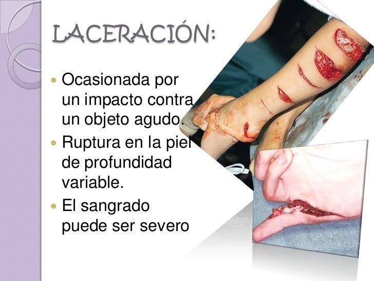 LACERACIÓN: Ocasionada por  un impacto contra  un objeto agudo. Ruptura en la piel  de profundidad  variable. El sangra...