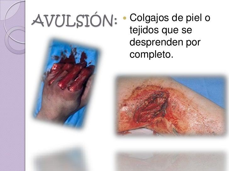AVULSIÓN:      Colgajos de piel o                tejidos que se                desprenden por                completo.