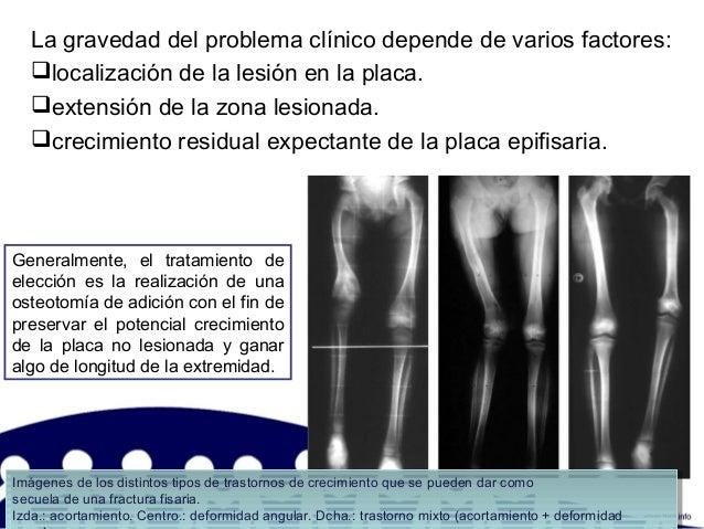 La gravedad del problema clínico depende de varios factores: localización de la lesión en la placa. extensión de la zona...