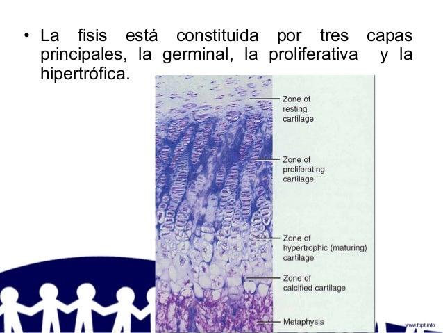 • La fisis está constituida por tres capas principales, la germinal, la proliferativa y la hipertrófica.