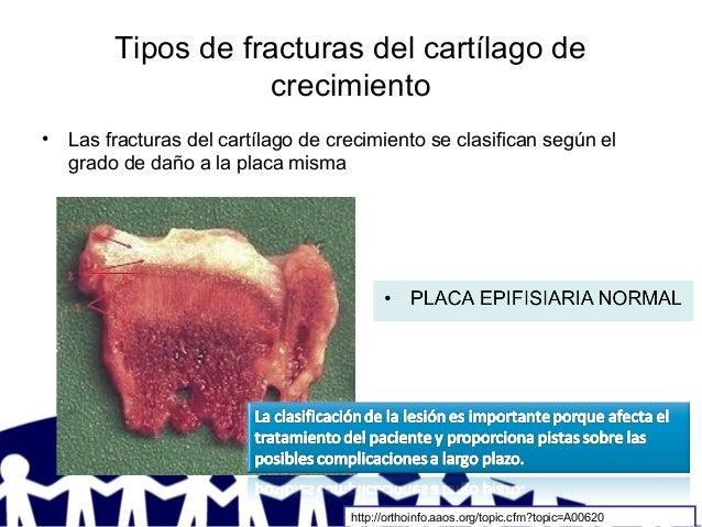 Tipos de fracturas del cartílago de crecimiento • Las fracturas del cartílago de crecimiento se clasifican según el grado ...