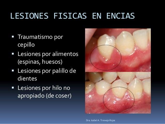 Hilo dental de peru - 1 2