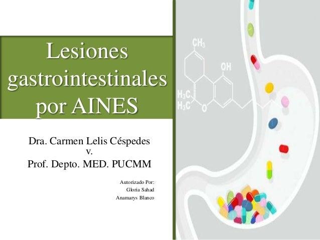 Lesiones gastrointestinales por AINES Dra. Carmen Lelis Céspedes v. Prof. Depto. MED. PUCMM Autorizado Por: Gloria Sahad A...