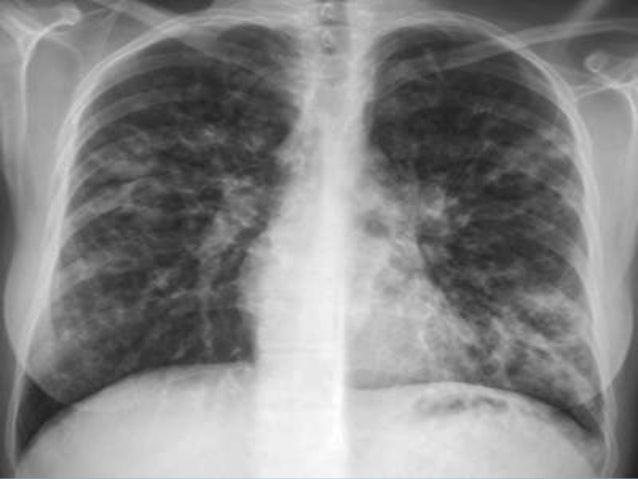 Hipertensión portal Experimento todos estudiaremos de