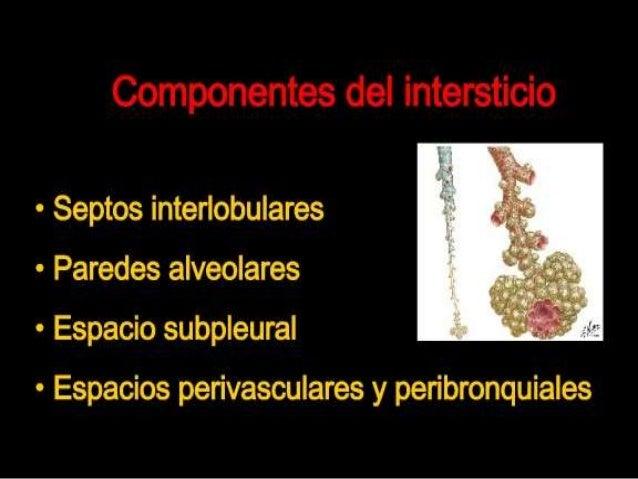 Lesiones intersticiales Slide 3