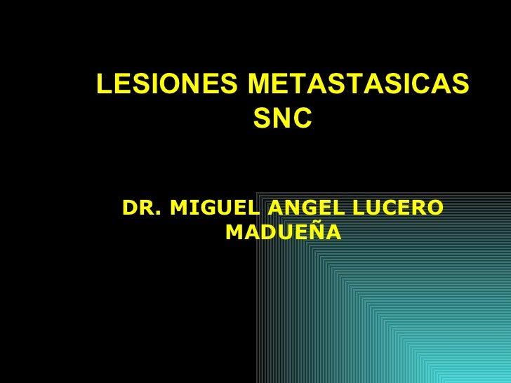 LESIONES METASTASICAS SNC DR. MIGUEL ANGEL LUCERO MADUEÑA