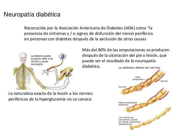 Lesiones micro y macro en diabetes