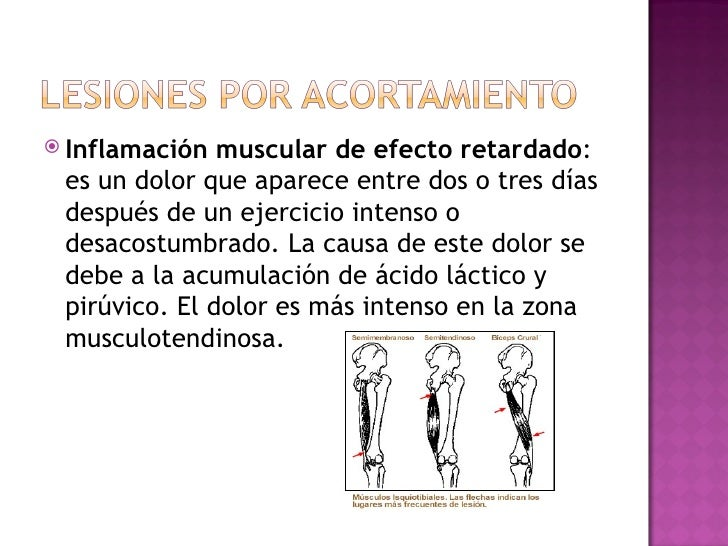 La osteocondrosis de la columna vertebral por el método bubnovskogo