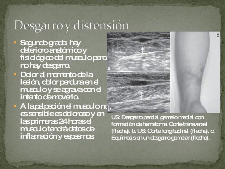 <ul><li>Segundo grado: hay deterioro anatómico y fisiológico del musculo pero no hay desgarro. </li></ul><ul><li>Dolor al ...