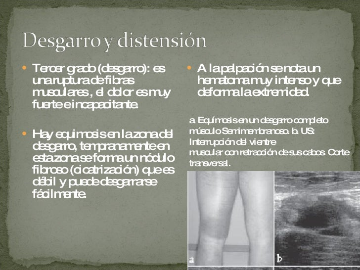 <ul><li>Tercer grado (desgarro): es una ruptura de fibras musculares , el dolor es muy fuerte e incapacitante. </li></ul><...