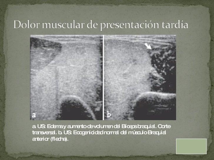 a. US: Edema y aumento de  volumen del Bíceps braquial. Corte transversal. b. US:  Ecogenicidad normal del músculo Braquia...
