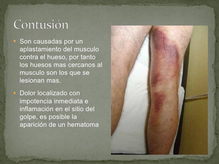 <ul><li>Son causadas por un aplastamiento del musculo contra el hueso, por tanto los huesos mas cercanos al musculo son lo...