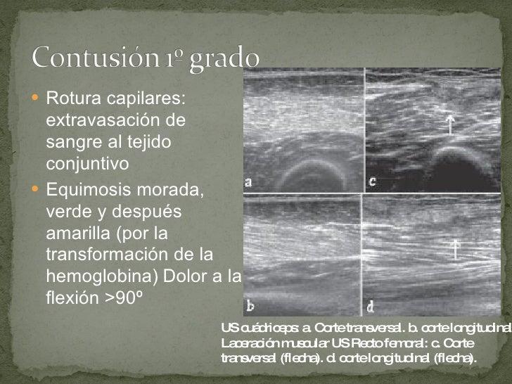 <ul><li>Rotura capilares: extravasación de sangre al tejido   conjuntivo </li></ul><ul><li>Equimosis morada, verde y despu...