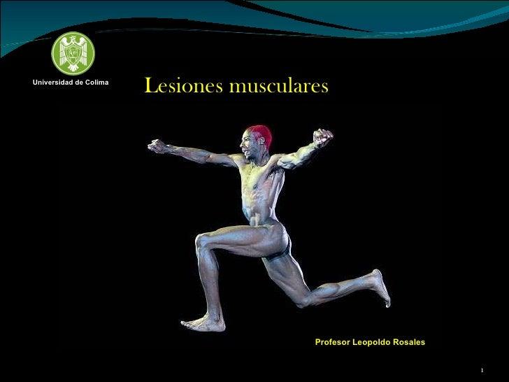 Lesiones musculares Profesor Leopoldo Rosales Universidad de Colima
