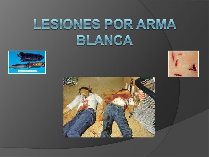 Lesiones por arma blanca<br />