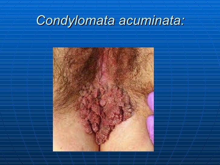 Lesiones preinvasivas de cáncer de cervix