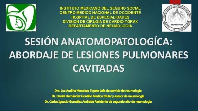 SESIÓN ANATOMOPATOLOGÍCA: ABORDAJE DE LESIONES PULMONARES CAVITADAS INSTITUTO MEXICANO DEL SEGURO SOCIAL CENTRO MEDICO NAC...