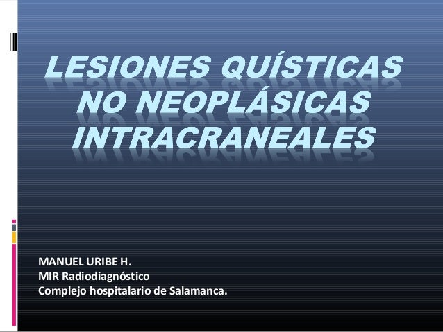 MANUEL URIBE H. MIR Radiodiagnóstico Complejo hospitalario de Salamanca.