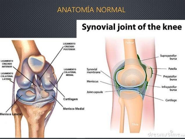 Lesiones quísticas y bursitis de rodilla