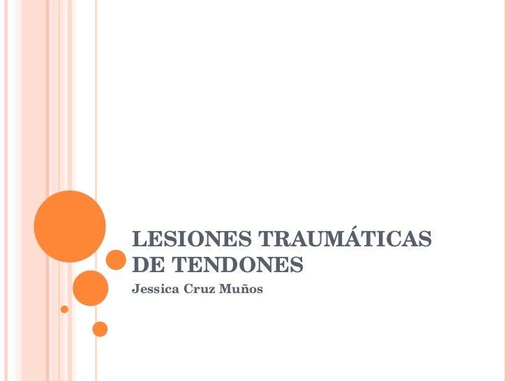 LESIONES TRAUMÁTICAS DE TENDONES  Jessica Cruz Muños