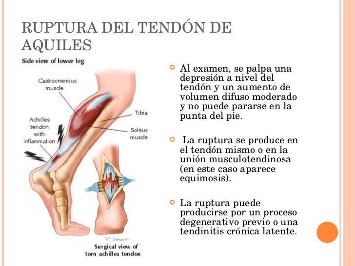 Moderno Tendón Definición Anatomía Ilustración - Anatomía de Las ...