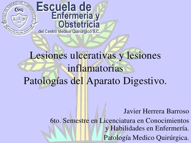 Lesiones ulcerativas y lesiones inflamatoriasPatologías del Aparato Digestivo.<br />Javier Herrera Barroso<br />6to. Semes...