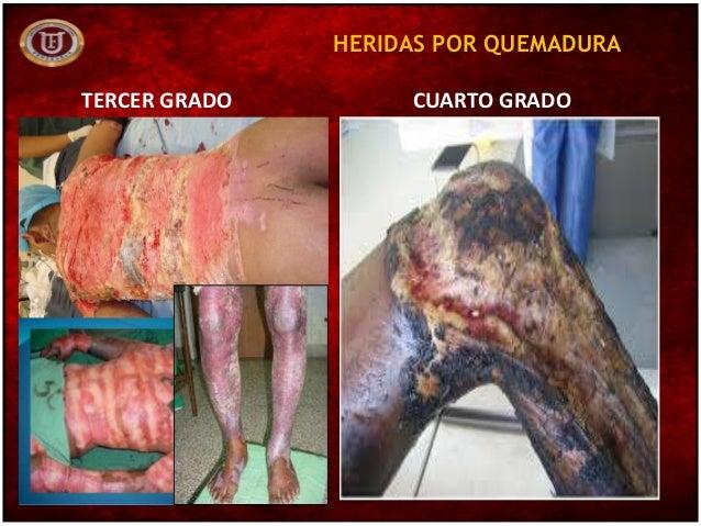 Medicina legal lesionolog a for Quemadura cuarto grado
