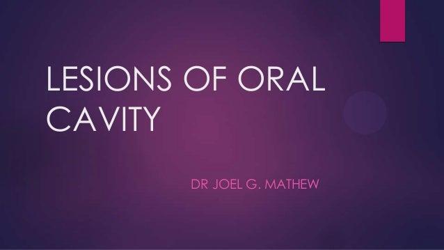 LESIONS OF ORAL CAVITY DR JOEL G. MATHEW