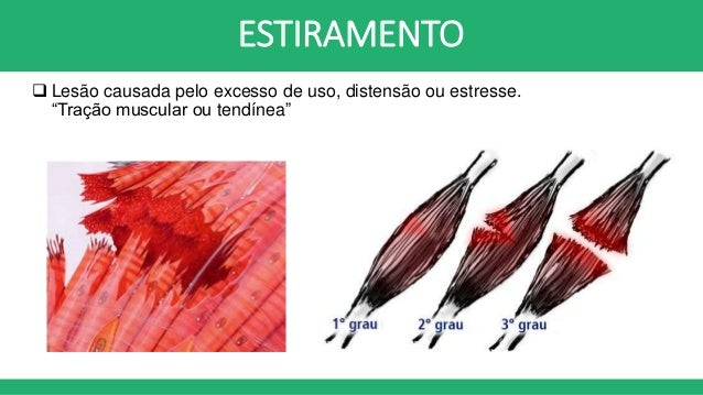 Image Result For Espasmo Muscular