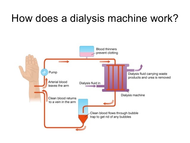 what does a dialysis machine do