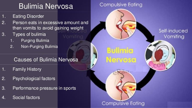 Bulimia Nervosa 1. Eating Disorder 2. Person eats in excessive amount and then vomits to avoid gaining weight 3. Types of ...