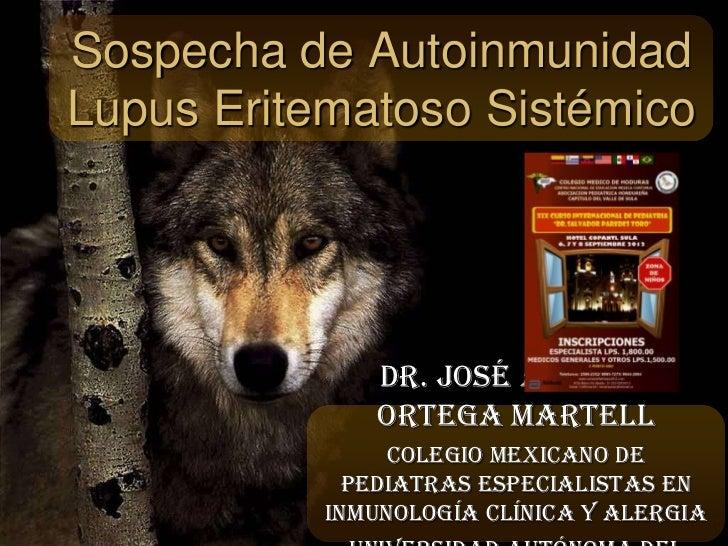 Sospecha de AutoinmunidadLupus Eritematoso Sistémico              Dr. José Antonio              Ortega Martell            ...