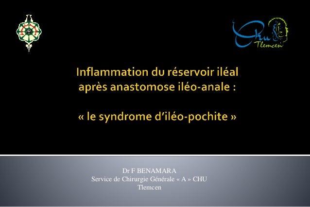 Dr F BENAMARA  Service de Chirurgie Générale « A » CHU  Tlemcen