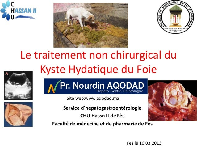Le traitement non chirurgical du    Kyste Hydatique du Foie            Site web:www.aqodad.ma           Service d'hépatoga...