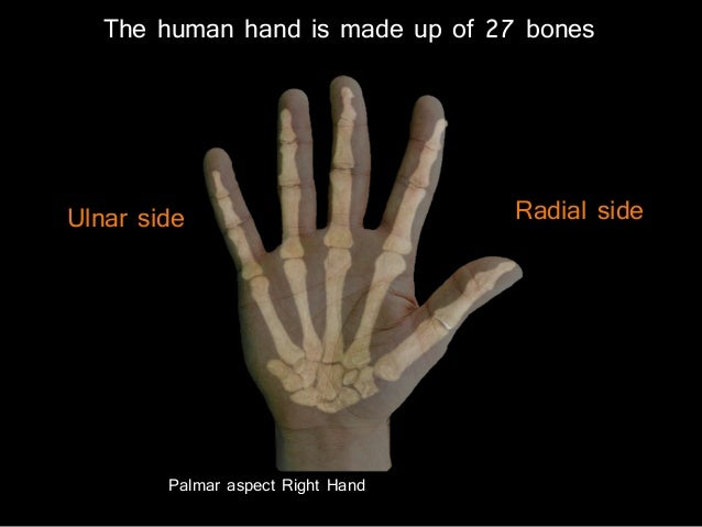 slideshow: carpus and hand bones, Sphenoid