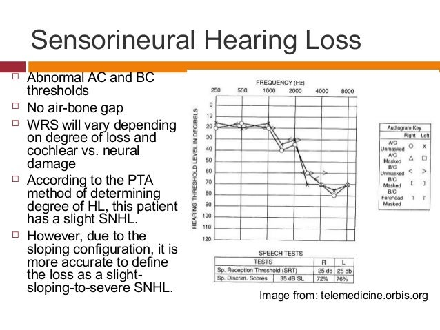 sudden sensorineural hearing loss steroid treatment