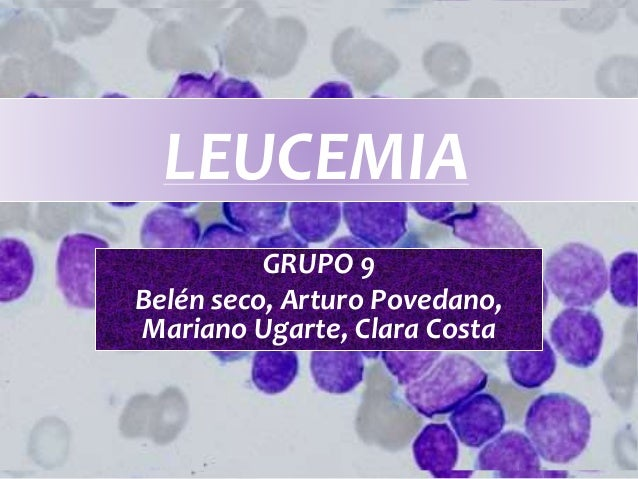 LEUCEMIA GRUPO 9 Belén seco, Arturo Povedano, Mariano Ugarte, Clara Costa