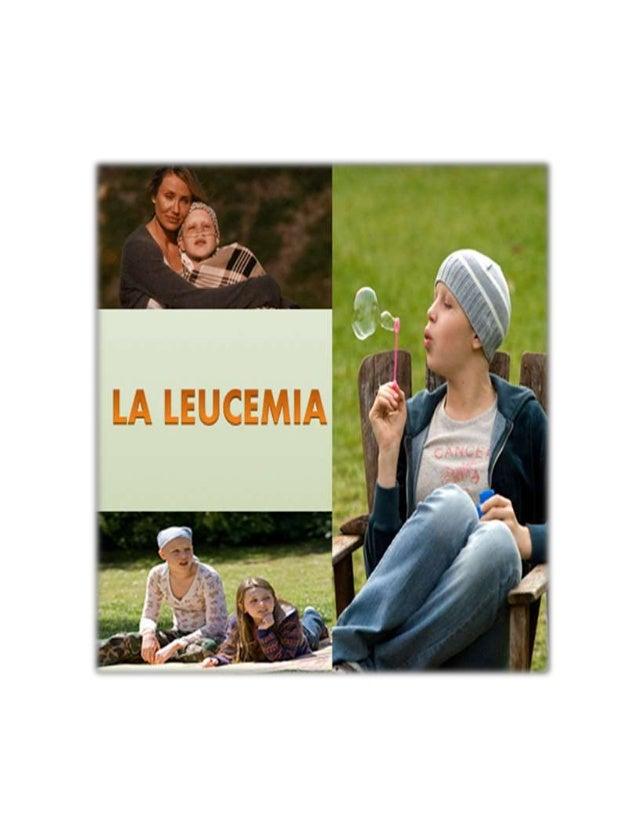 Introducción Las leucemias han sido foco de una impresionante investigación médica, debido a varias razones: sus dramática...